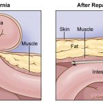 hernia-surgery in hyderabad