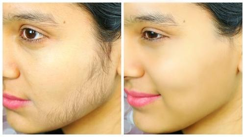Laser hair removal treatment cost in Warangal