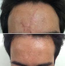 Laser scar removal treatment cost in Hyderabad
