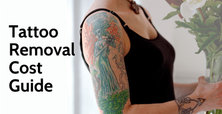 Tattoo removal treatment cost in Hyderabad